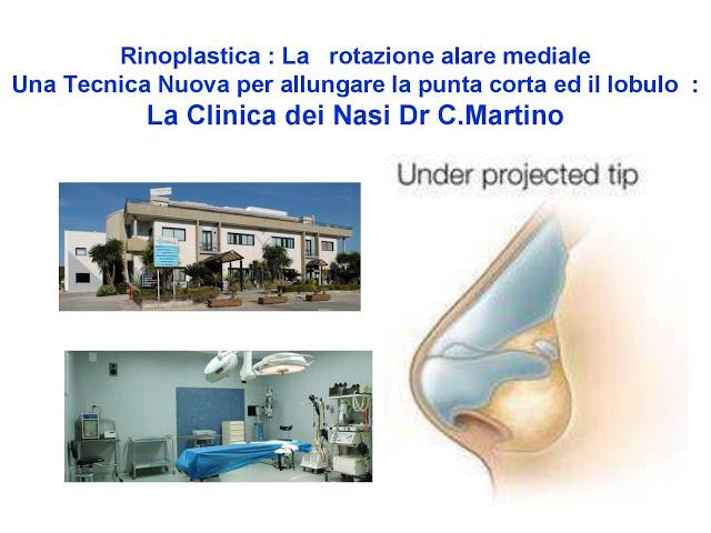 86 bis  Rinoplastica   Una tecnica nuova pe allungare  il naso corto   (la rotazione alare mediale)  -page-001