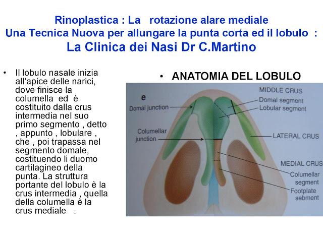 86 bis  Rinoplastica   Una tecnica nuova pe allungare  il naso corto   (la rotazione alare mediale)  -page-004