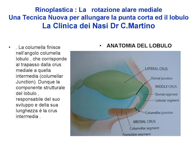 86-bis-rinoplastica-una-tecnica-nuova-pe-allungare-il-naso-corto-la-rotazione-alare-mediale-page-005