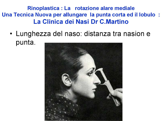 86-bis-rinoplastica-una-tecnica-nuova-pe-allungare-il-naso-corto-la-rotazione-alare-mediale-page-007-1