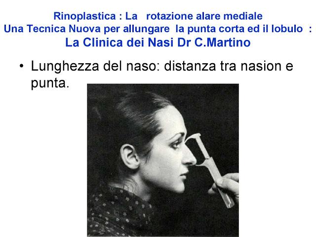 86 bis  Rinoplastica   Una tecnica nuova pe allungare  il naso corto   (la rotazione alare mediale)  -page-007