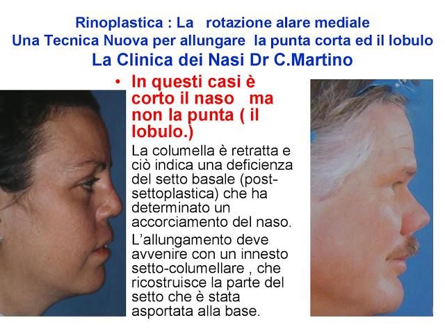86 bis  Rinoplastica   Una tecnica nuova pe allungare  il naso corto   (la rotazione alare mediale)  -page-011