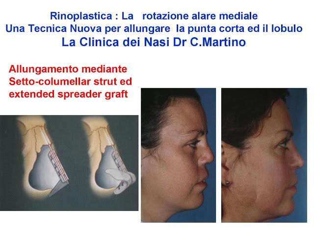 86 bis  Rinoplastica   Una tecnica nuova pe allungare  il naso corto   (la rotazione alare mediale)  -page-012