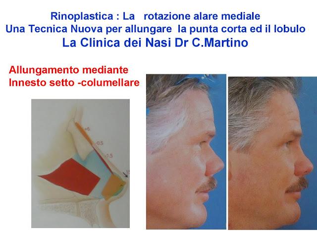 86 bis  Rinoplastica   Una tecnica nuova pe allungare  il naso corto   (la rotazione alare mediale)  -page-013