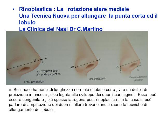 86 bis  Rinoplastica   Una tecnica nuova pe allungare  il naso corto   (la rotazione alare mediale)  -page-015