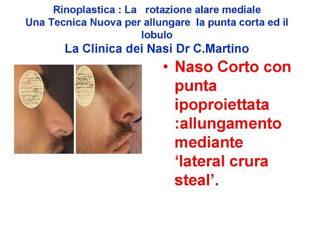 86 bis  Rinoplastica   Una tecnica nuova pe allungare  il naso corto   (la rotazione alare mediale)  -page-020