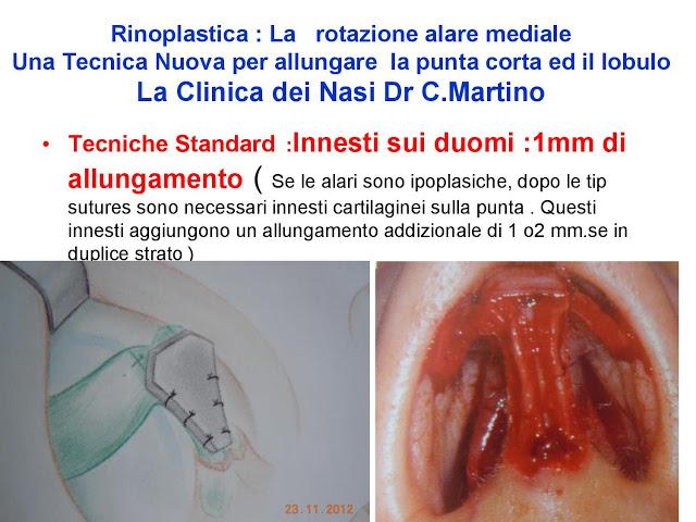 86 bis  Rinoplastica   Una tecnica nuova pe allungare  il naso corto   (la rotazione alare mediale)  -page-021