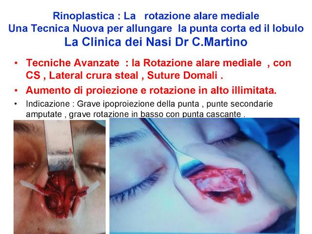 86 bis  Rinoplastica   Una tecnica nuova pe allungare  il naso corto   (la rotazione alare mediale)  -page-026