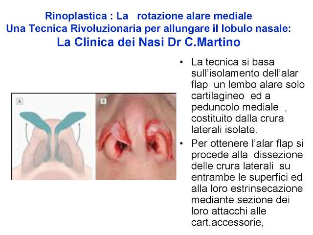 86 bis  Rinoplastica   Una tecnica nuova pe allungare  il naso corto   (la rotazione alare mediale)  -page-029