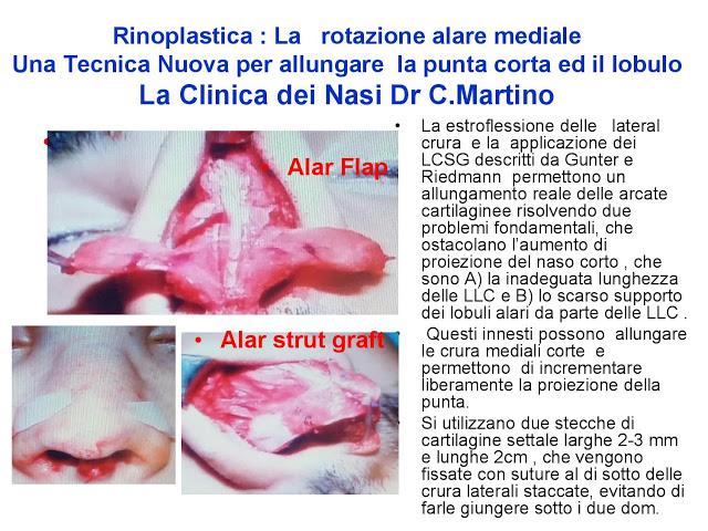 86 bis  Rinoplastica   Una tecnica nuova pe allungare  il naso corto   (la rotazione alare mediale)  -page-031