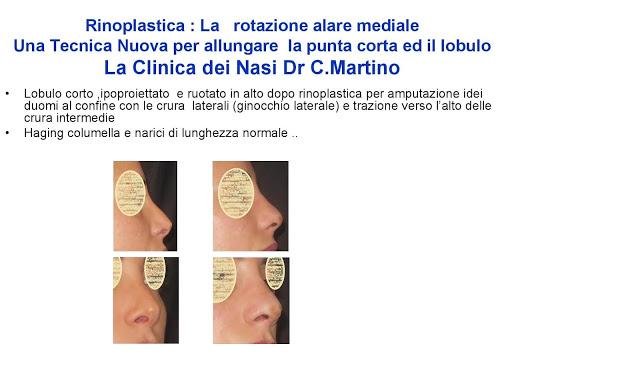 86-bis-rinoplastica-una-tecnica-nuova-pe-allungare-il-naso-corto-la-rotazione-alare-mediale-page-034