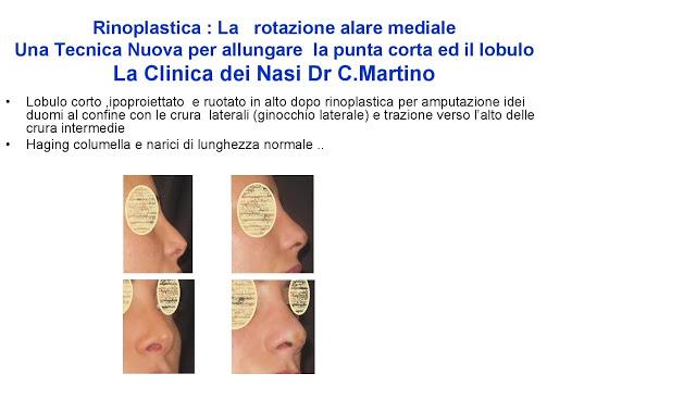 86 bis  Rinoplastica   Una tecnica nuova pe allungare  il naso corto   (la rotazione alare mediale)  -page-034