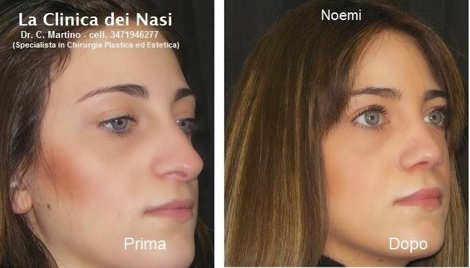 NOEMI FERRARA 333