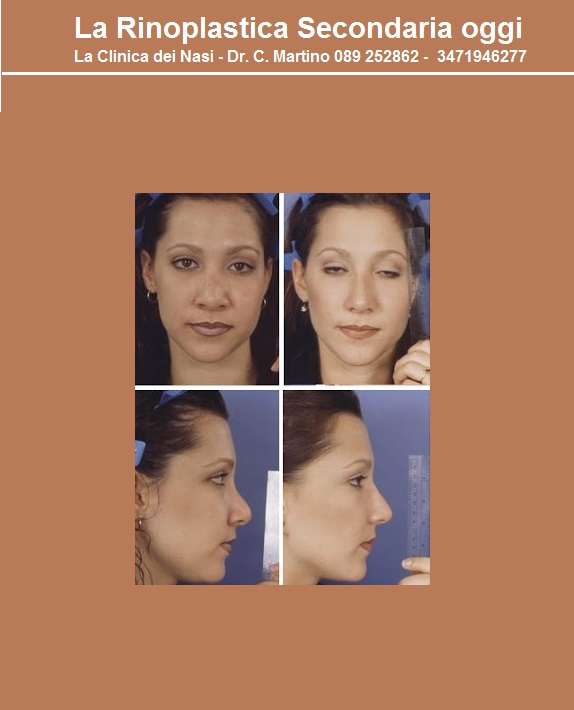 aa-rinoplatica-secondaria 5