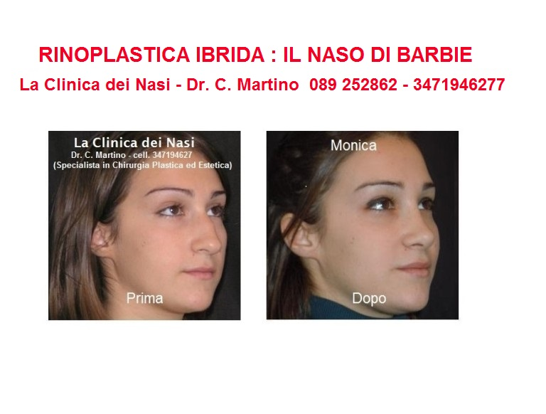 diapositiva-MONICA-4-768x582