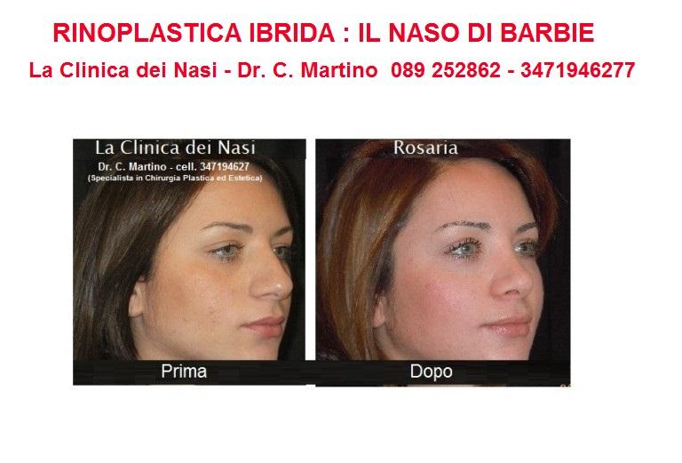 diapositiva-rosaria-4-768x521