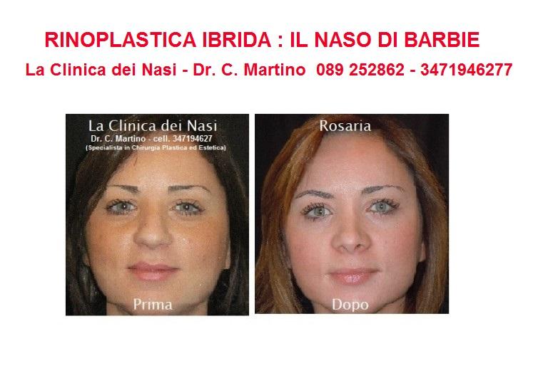 diapositiva-rosaria-5-768x531
