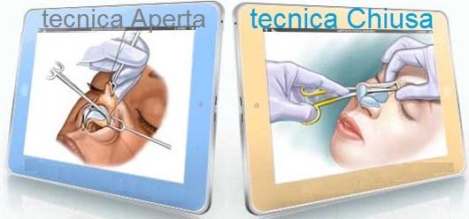 rinoplastica-aperta-vs-rinoplastica-chiusaq