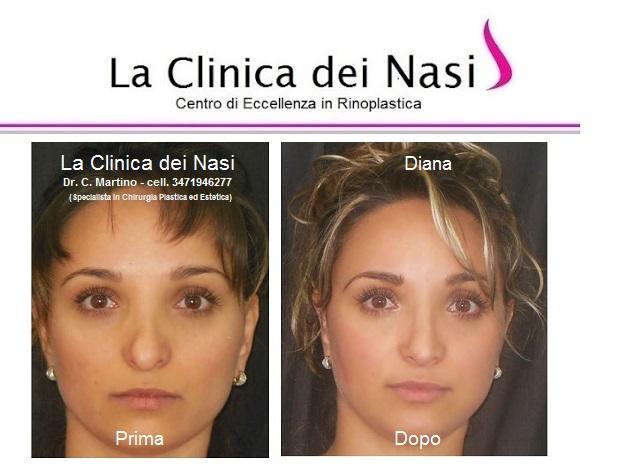 rinoplastica-diana -0001