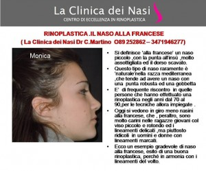rinoplastica donna 00000