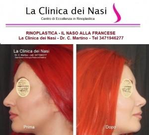 rinoplastica donna 1