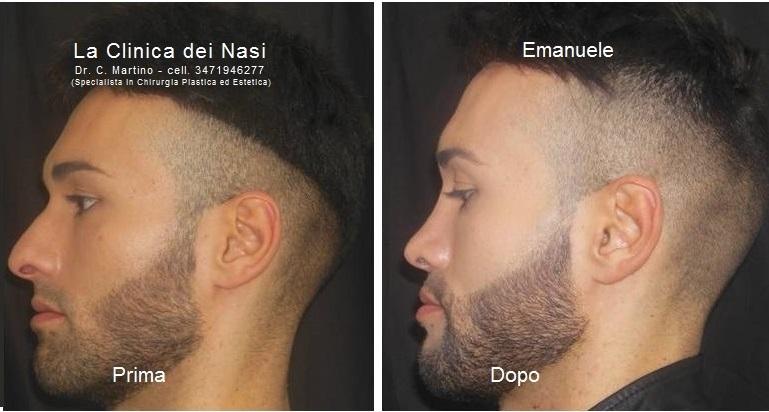 rinoplastica-emanuele-1