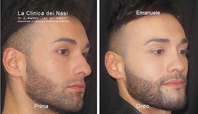 rinoplastica-emanuele-3