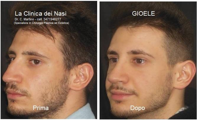 rinoplastica-gioele-0-5