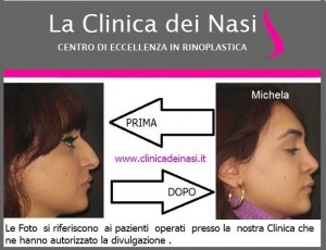 rinoplastica michela 3