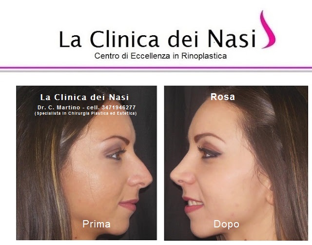 rinoplastica-rosa-011