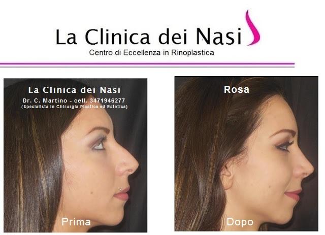 rinoplastica-rosa-012