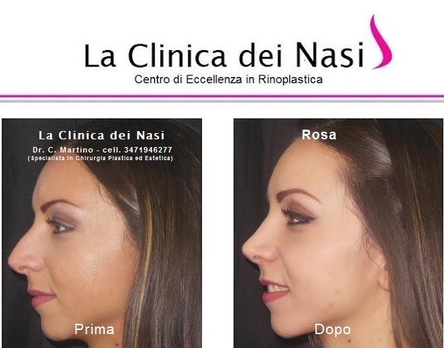 rinoplastica-rosa-013