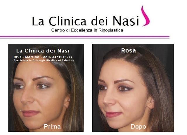 rinoplastica-rosa-014