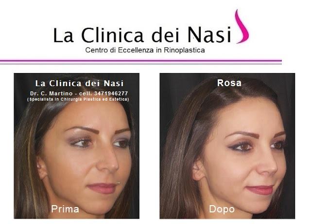 rinoplastica-rosa-015