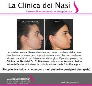 rinoplastica rosa 65