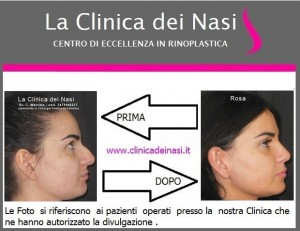 rinoplastica rosa 68