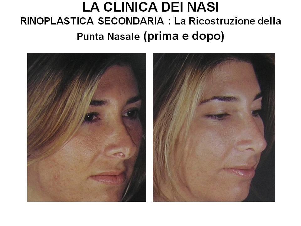 rinoplastica-secondaria-punta-nasale
