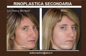 rosa-mastuccino-2
