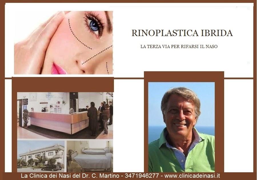 trinoplastica anna -10